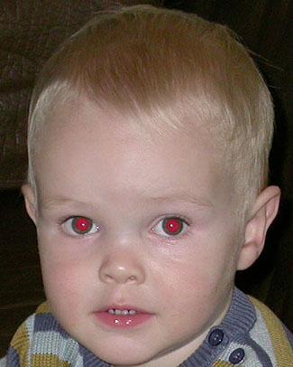 rød refleks øje